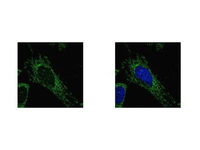 SUCLG1 Polyclonal Antibody