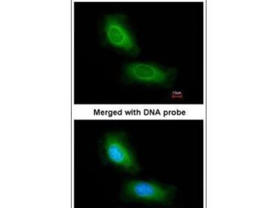 CCDC68 Antibody