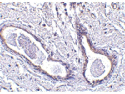 ABRA1 Polyclonal Antibody
