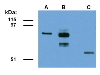 ABRA1 Monoclonal Antibody (ABRA1-01)