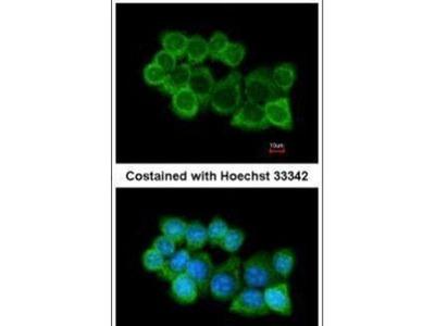SNAP alpha Polyclonal Antibody