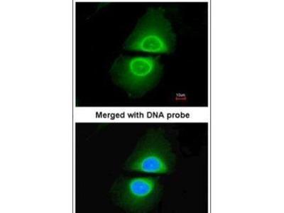 CYP4A11 Polyclonal Antibody