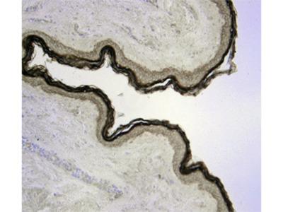 Human / Mouse Kallikrein 7 Antibody