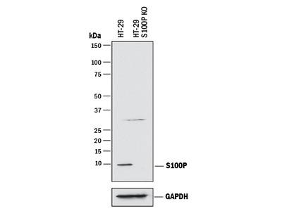 S100P Antibody
