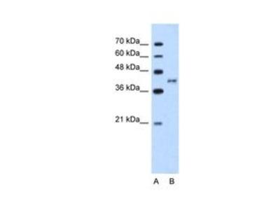 Anti-BDKRB2 antibody, N-term