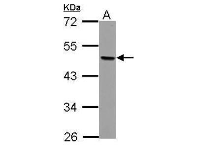 Anti-AP2 beta antibody