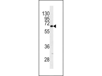Anti-Cytokeratin 9 antibody, Internal