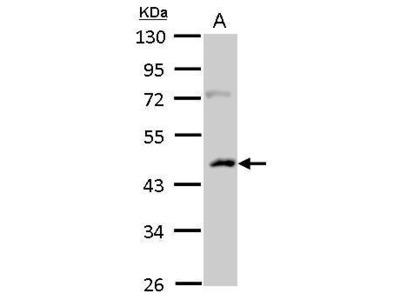 Anti-Casein Kinase 1 alpha 1L antibody