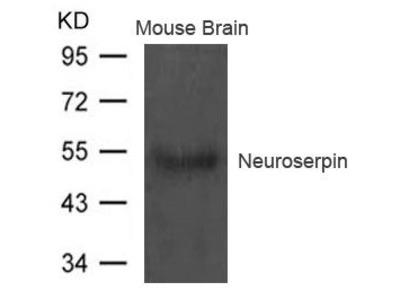 Anti-Neuroserpin antibody