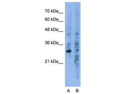 Anti-GNB1L antibody, C-term
