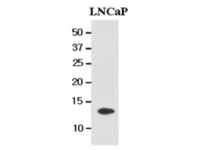 Anti-TBCA antibody [AT1A5]