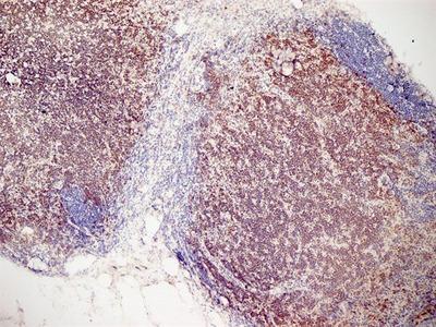 Anti-CD3 antibody [KT3]