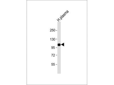Anti-Factor B (Bb fragment) antibody, Internal