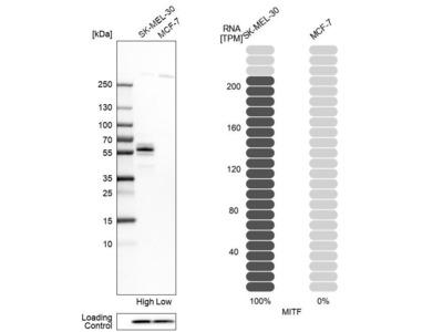Anti-MITF Antibody