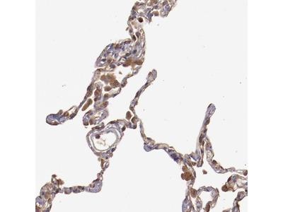Anti-SRRD Antibody