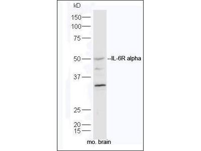 Anti-IL6 Receptor antibody