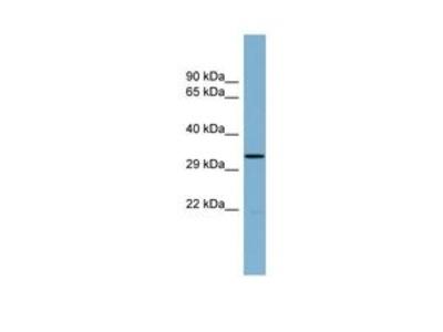 Anti-THG1L antibody, Internal