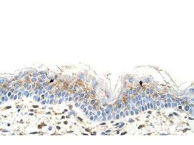 Anti-S100A3 antibody, N-term