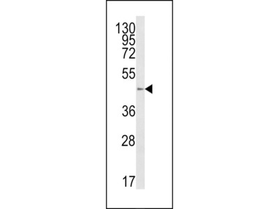Anti-B4GalT1 antibody, C-term