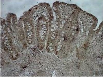 Anti-CPS1 antibody, Internal