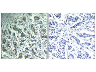 Anti-PLCG1 antibody