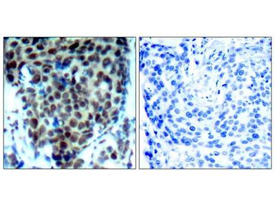 Anti-p38 MAPK (phospho Thr180) antibody