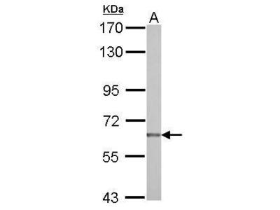 Anti-NUAK2 antibody