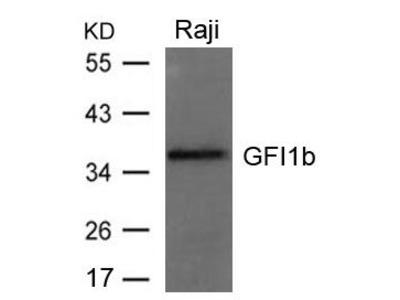 Anti-GFI1b antibody