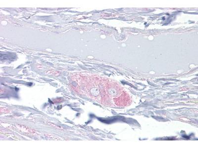 Anti-CRMP4 antibody, Internal