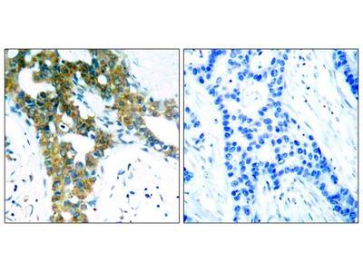 Anti-PAK1/PAK2/PAK3 antibody