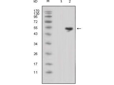 Anti-Lipocalin 1 antibody [10B10]