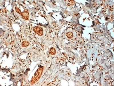 Anti-Estrogen Receptor beta 2 antibody [57/3]
