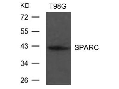 Anti-SPARC antibody