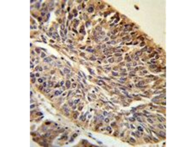 Anti-PITX1 antibody, Internal