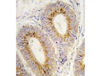Anti-Methionyl tRNA synthetase antibody, C-term