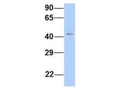 Anti-TRABD antibody, Internal