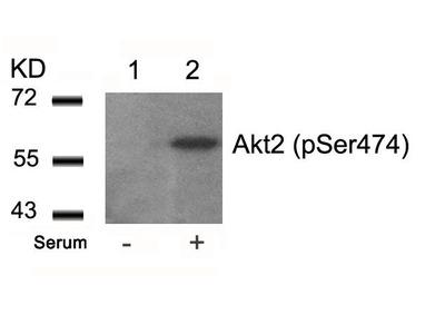 Anti-AKT2 (phospho Ser474) antibody