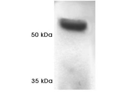 Anti-Proteasome 19S Subunit S4 antibody