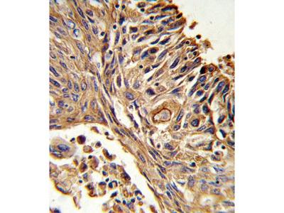 Anti-IL18 Receptor beta antibody, N-term