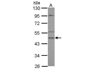 Anti-Casein Kinase 1 gamma 2 antibody [N3C3]