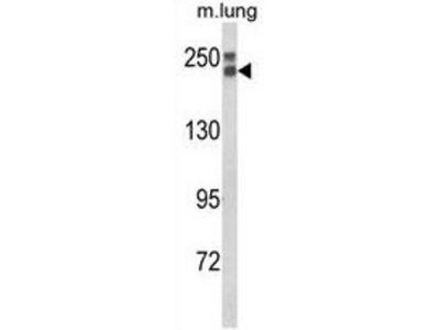 Anti-COL18A1 antibody, N-term