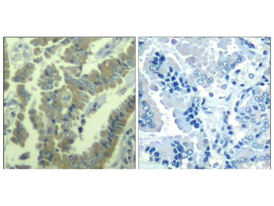 Anti-MARCKS (phospho Ser170) antibody