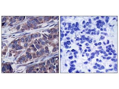 Anti-p62Dok (phospho Tyr362) antibody