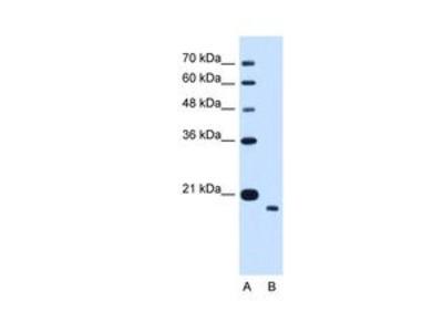 Anti-TMEM91 antibody, N-term