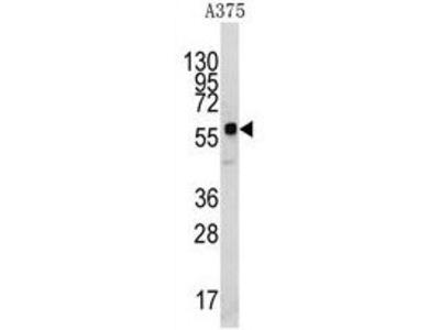 Anti-KREMEN1 antibody, N-term