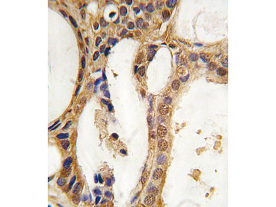 Anti-PIM1 antibody