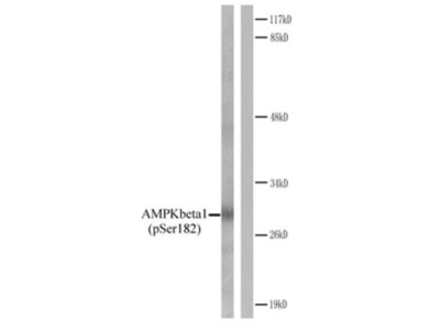 Anti-AMPK beta 1 (phospho Ser182) antibody