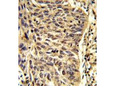 Anti-SNRPD1 antibody, Internal