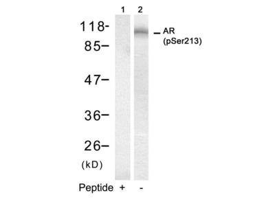Anti-Androgen Receptor (phospho Ser213) antibody