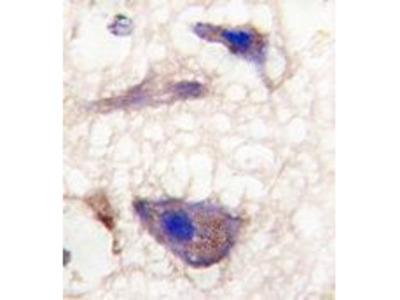 Anti-NP1 antibody, C-term